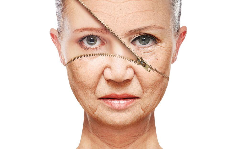 מתיחת עור הפנים